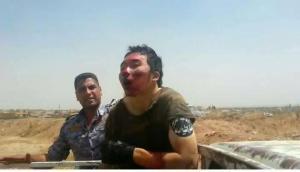 Dieser ISIS-Terrorist wurde von Kurden gefangen genommen.....